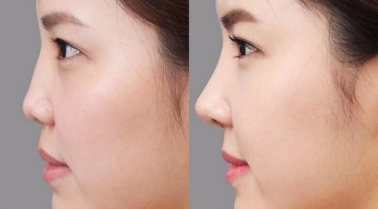 Hình ảnh trước và sau khi chỉnh sửa mũi hếch, ngắn