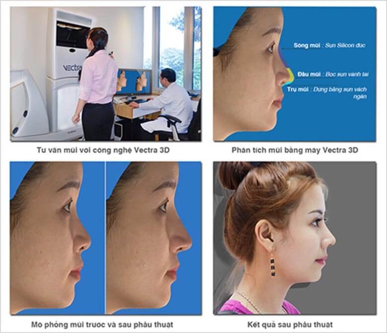 Dựa vào công nghệ Vectra XT 3D để mô phỏng hình dáng mũi sau phẫu thuật