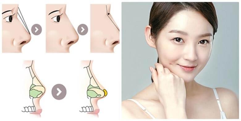 Mũi hếch, mũi tẹt,… đều được khắc phục nhờ nâng mũi S line