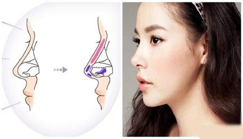 Nâng mũi L line 2 lớp phương pháp làm đẹp được rất nhiều người quan tâm