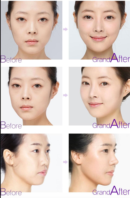 Kết quả trước và sau khi phẫu thuật nâng mũi bọc sụn bằng sụn tự thân