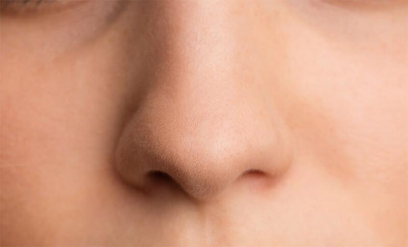 Phương pháp nâng mũi bọc sụn là phương pháp không gây sưng cũng như không để lại sẹo