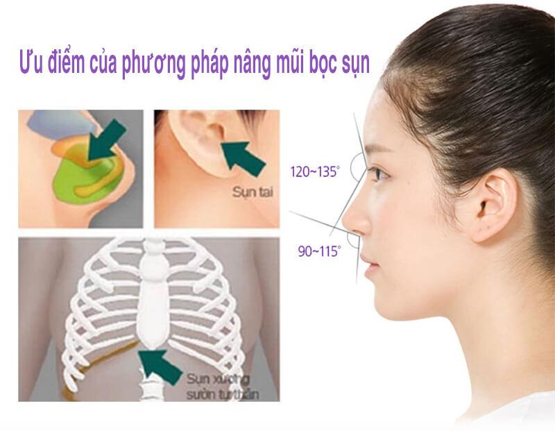Nâng mũi bằng sụn tự thân là phương pháp nâng mũi đầy ưu điểm không sợ biến chứng