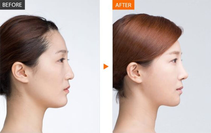 Nâng mũi bọc sụn là phương pháp làm đẹp hoàn hảo nhất hiện nay, phù hợp với hầu hết khách hàng