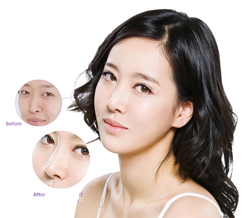 Phương pháp nâng mũi này an toàn không để lại sẹo