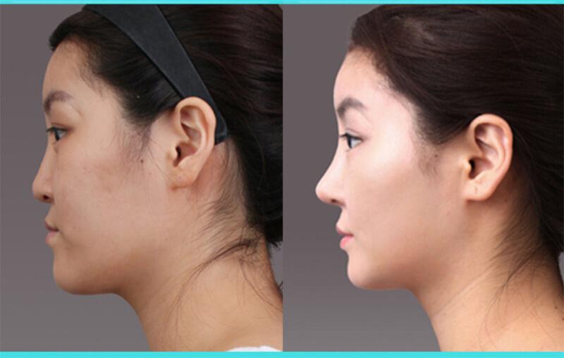 Kết quả nâng mũi sụn mềm Hàn Quốc đẹp tự nhiên, bền bỉ với thời gian