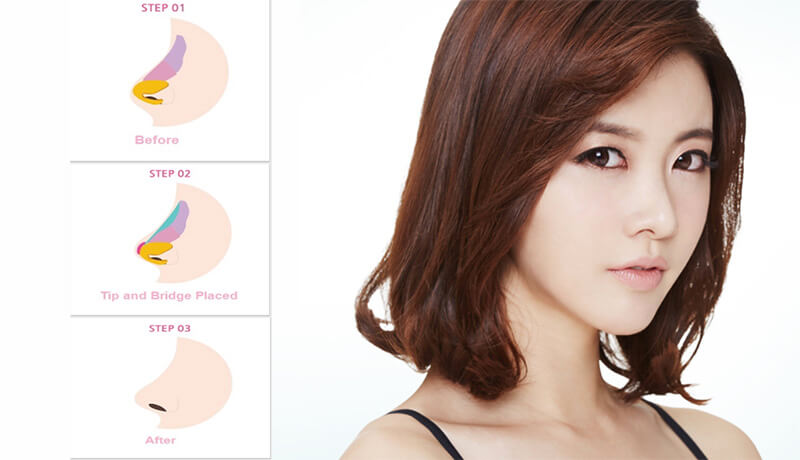 Hiện có 4 phương pháp nâng mũi đẹp chuẩn theo tiêu chuẩn Hàn Quốc