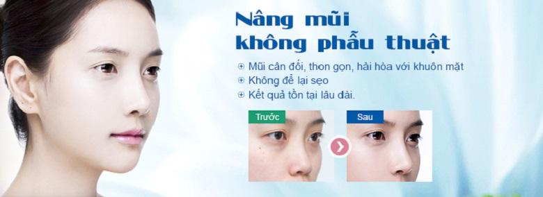nang-mui-khong-phau-thuat-la-gi