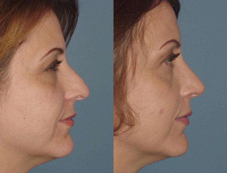 Hình dáng mũi trước và sau phẫu thuật nâng sửa mũi gồ
