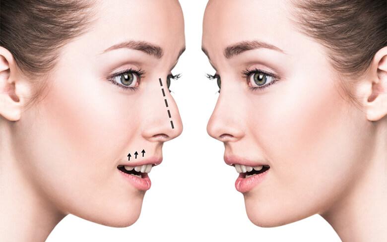 Quy trình phẫu thuật an toàn là điều kiện quan trọng cho bạn vẻ đẹp gắn liền với sức khỏe