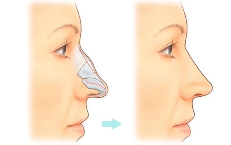 Nâng sửa mũi gồ không ảnh hưởng đến chức năng mũi