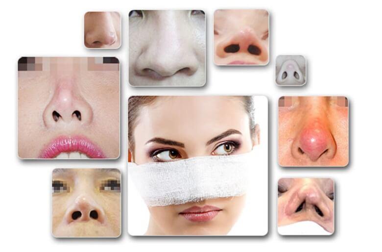 Những trường hợp nên sửa mũi để có được chiếc mũi đẹp chuẩn như sao