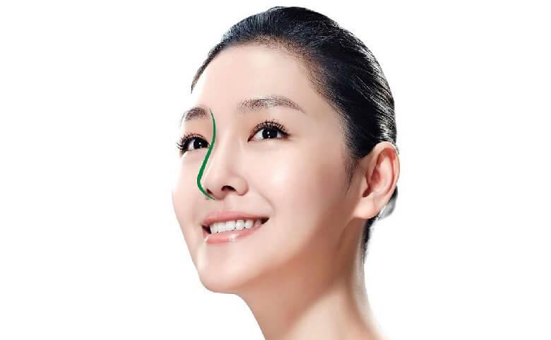 Phương pháp nâng sửa mũi bị hư hỏng bằng S line