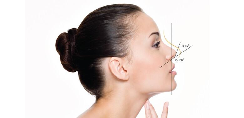 Nâng mũi là một cách giúp bạn có được vẻ đẹp hoàn hảo