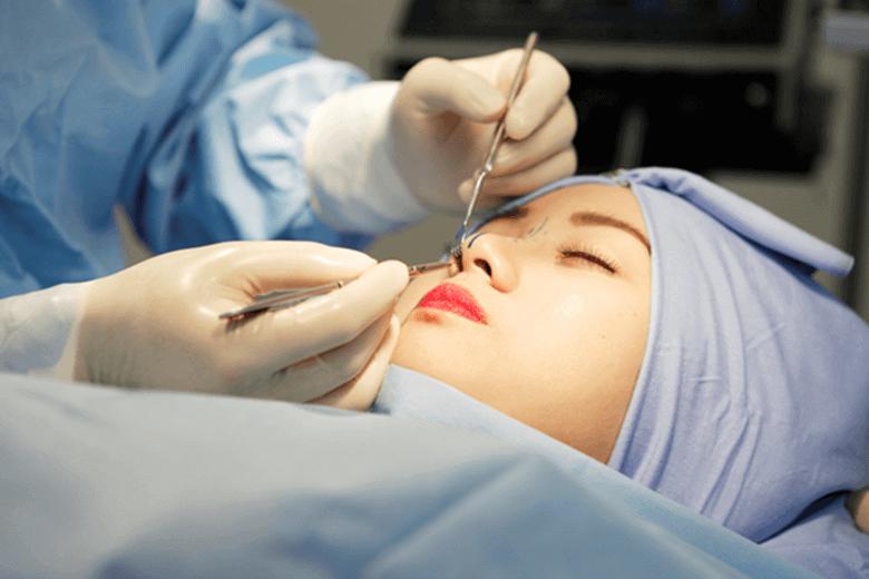 phẫu thuật cắt và thu gọn cánh mũi