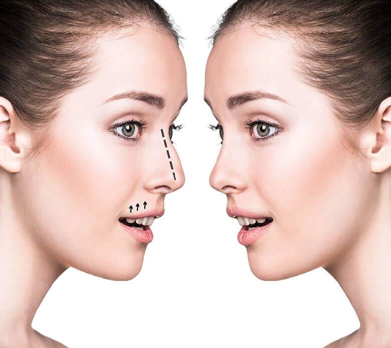 Dáng mũi đẹp thanh tú là ao ước của nhiều người