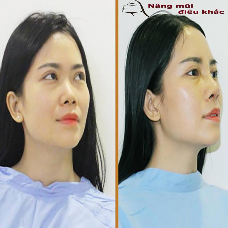 Kỹ thuật tạo hình mũi S line trong phương pháp nâng mũi bọc sụn