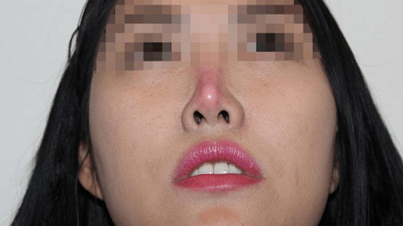Nguyên nhân và dấu hiệu nhiễm trùng sau khi nâng mũi bạn cần biết