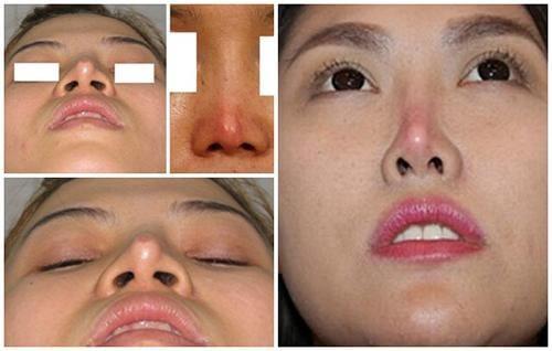 Sưng tím kéo dài sau phẫu thuật nâng mũi
