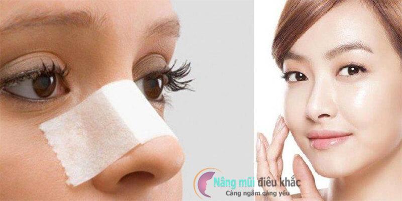 Trong những trường hợp bất khả kháng, tháo sụn mũi là giải pháp tối ưu