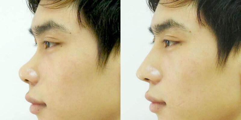 Hình ảnh mũi tẹt trước và sau khi thẩm mỹ nâng cao mũi