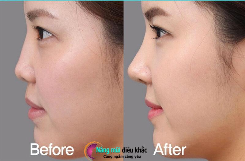 Nên quan tâm đến tình hình sức khỏe trước khi phẫu thuật nâng mũi