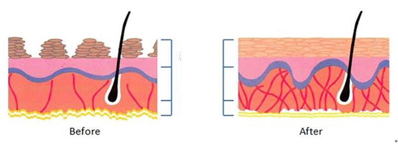 Qui trình nâng mũi bằng chỉUltra V Lift được thực hiện như thế nào