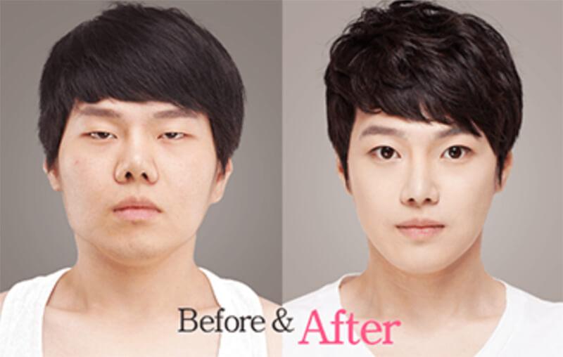 Sửa mũi cho nam giới đòi hỏi trình độ kỹ thuật cao và dày dặn kinh nghiệm