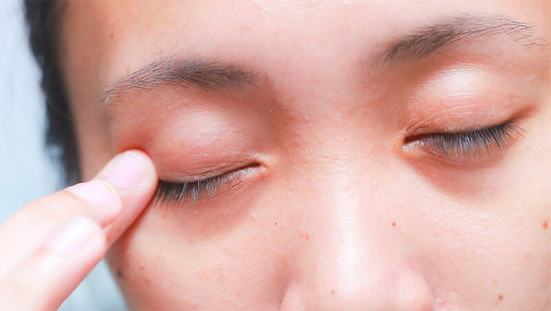 Massage mí mắt