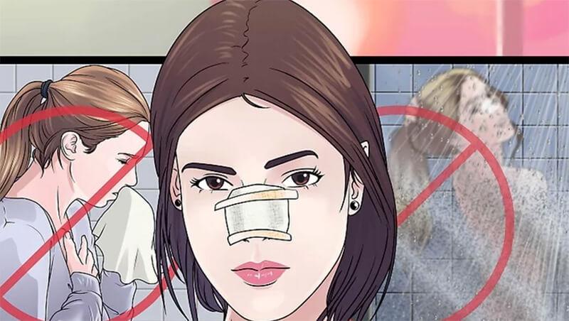 Hồi phục sau phẫu thuật