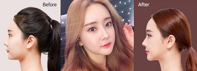 Nâng mũi điêu khắc Hàn Quốc ở đâu đẹp?