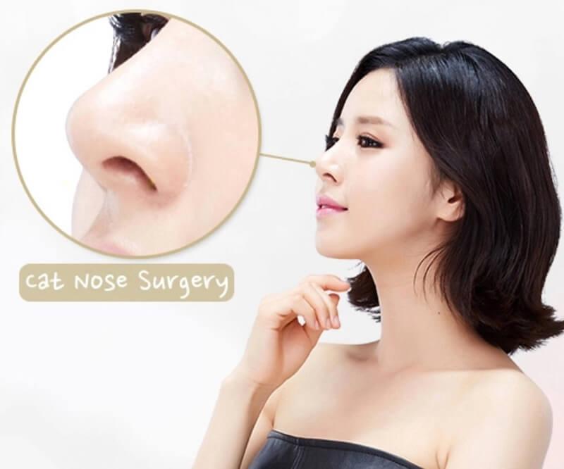 Nâng mũi điêu khắc Hàn Quốc là một kỹ thuật khó, tay nghề của bác sỹ quyết định hầu hết sự thành công của cuộc phẫu thuật